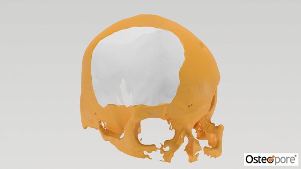 3D render of Osteopore's customised implant fitting into a skull defect